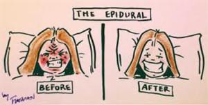 epidural2